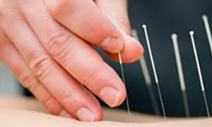 acupuncture comox valley